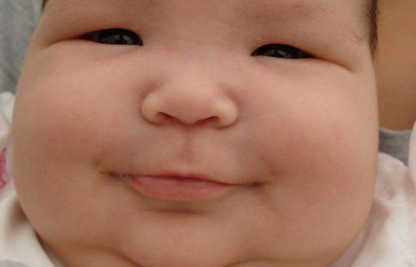 השמנת ילדים מגיפת המאה
